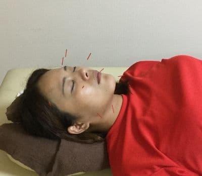 美容鍼灸プログラム